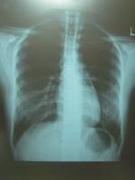 胃バリウム検査の放射能被曝量がマジでヤバイ5つの理由!検査結果は信用出来るの!?健康診断のバリウム検査は拒否出来る!?