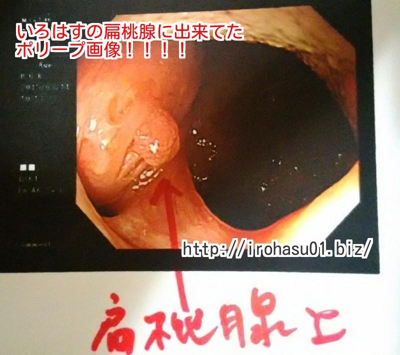 扁桃腺 正常 大きさ